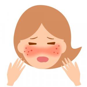 アトピー性皮膚炎 症状 原因