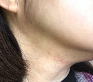 敏感肌 皮膚炎 資生堂IHADA 花粉症