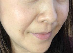 敏感肌用 薬用化粧品 資生堂IHADAを使っている女性の写真